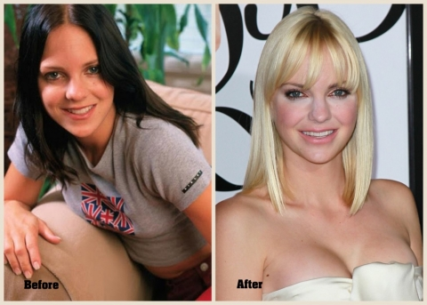 Anna Faris Plastic Surgery Pictures Reveal All